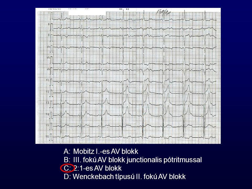 A: Mobitz I.-es AV blokk B: III. fokú AV blokk junctionalis pótritmussal.