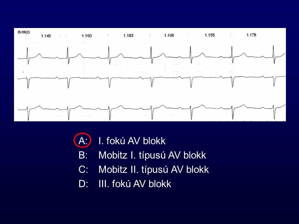 A: I. fokú AV blokk B: Mobitz I. típusú AV blokk.