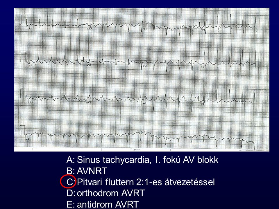 A: Sinus tachycardia, I. fokú AV blokk