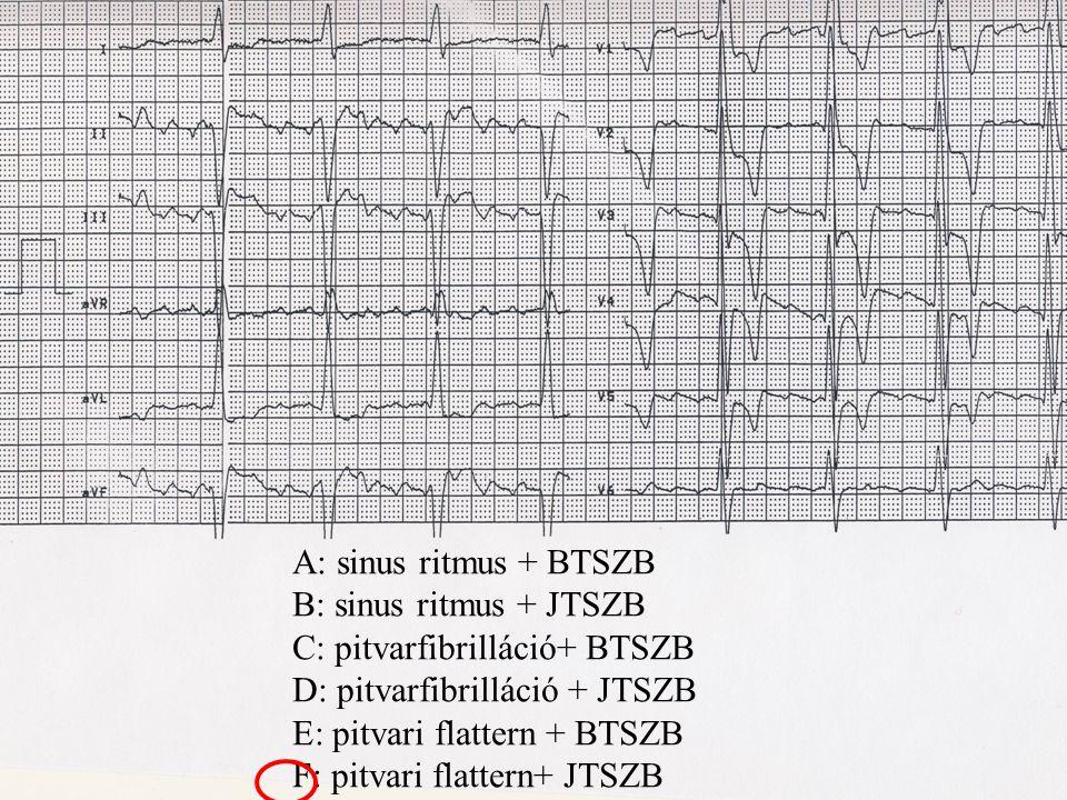 C: pitvarfibrilláció+ BTSZB D: pitvarfibrilláció + JTSZB