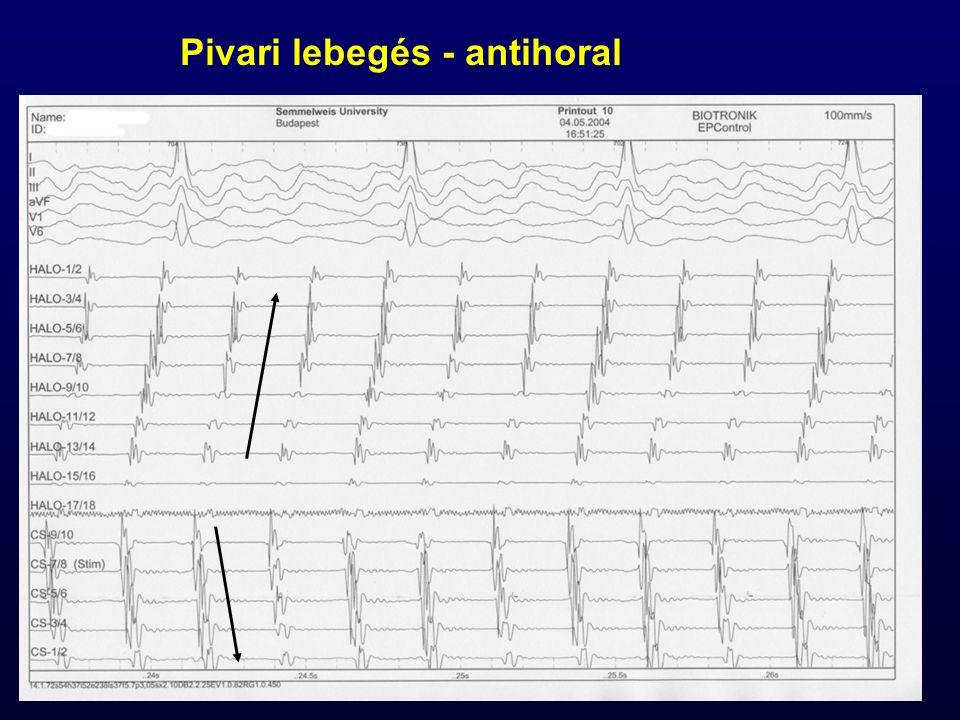 Pivari lebegés - antihoral