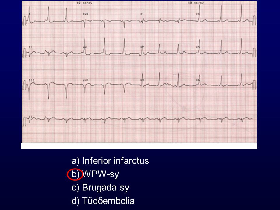 Inferior infarctus WPW-sy Brugada sy Tüdőembolia 30