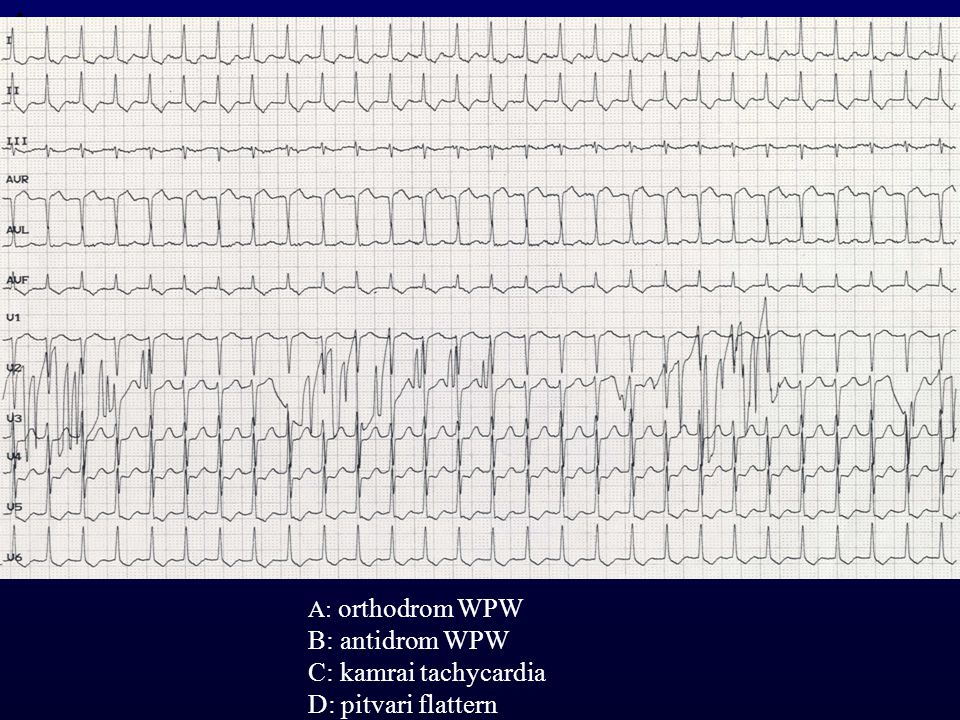 1 B: antidrom WPW C: kamrai tachycardia D: pitvari flattern