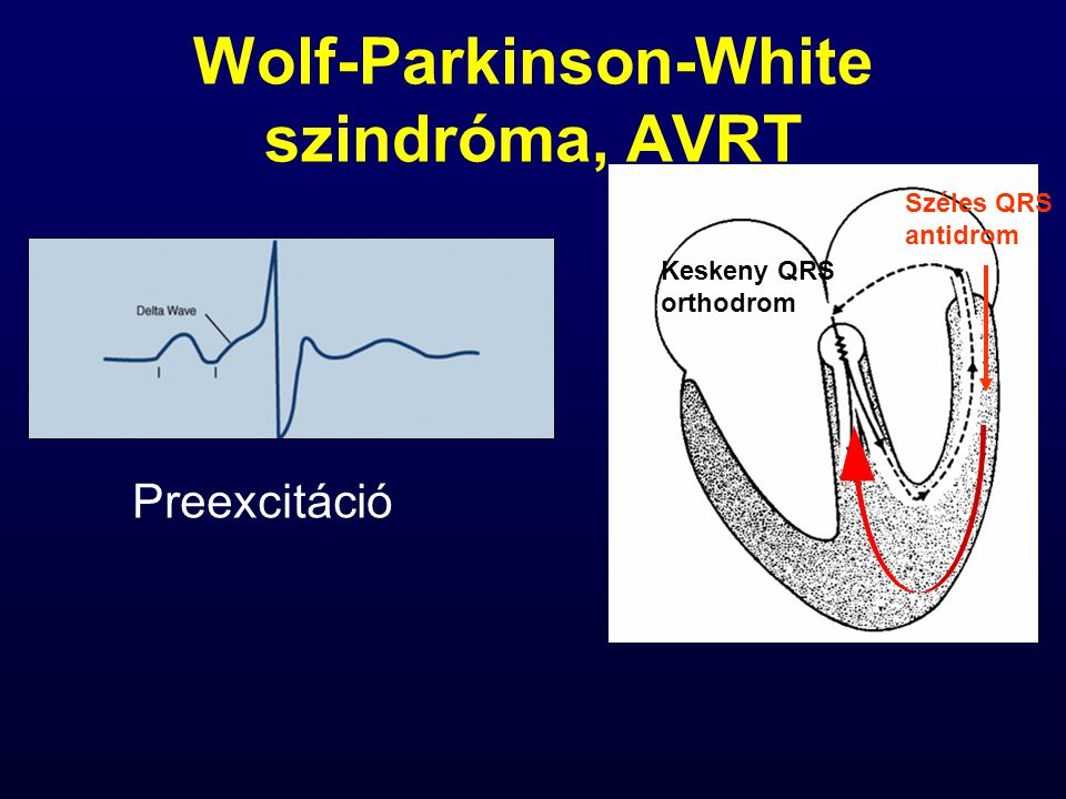 Wolf-Parkinson-White szindróma, AVRT