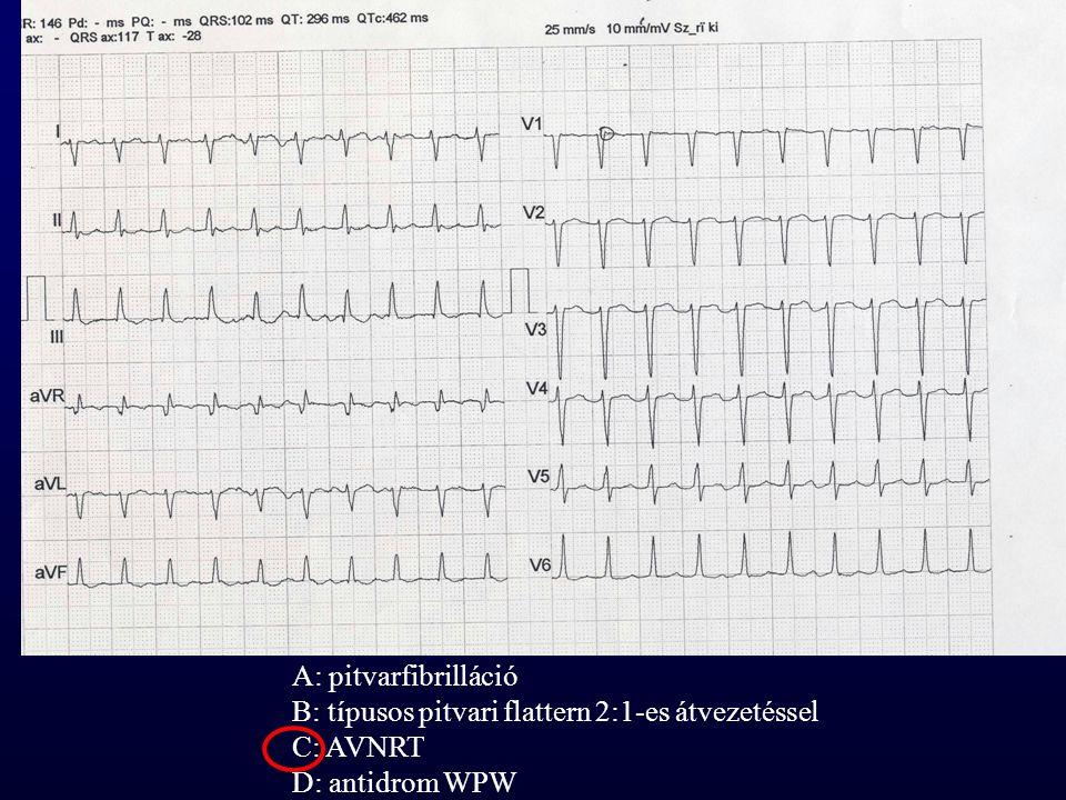 A: pitvarfibrilláció B: típusos pitvari flattern 2:1-es átvezetéssel C: AVNRT D: antidrom WPW