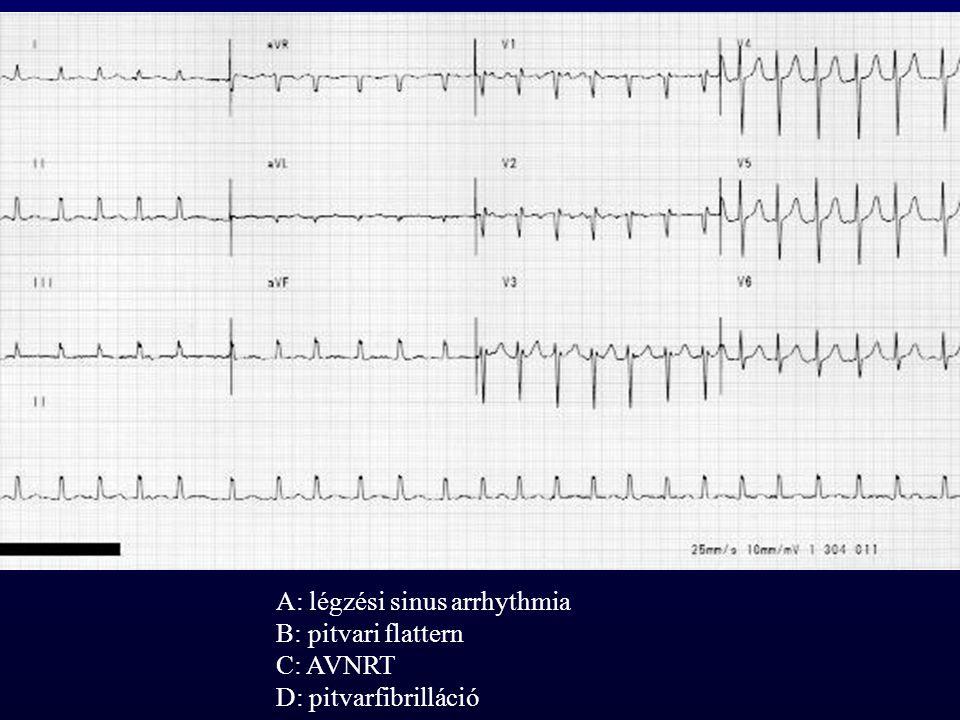 A: légzési sinus arrhythmia B: pitvari flattern C: AVNRT