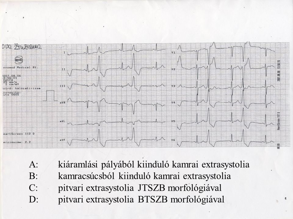 A: kiáramlási pályából kiinduló kamrai extrasystolia