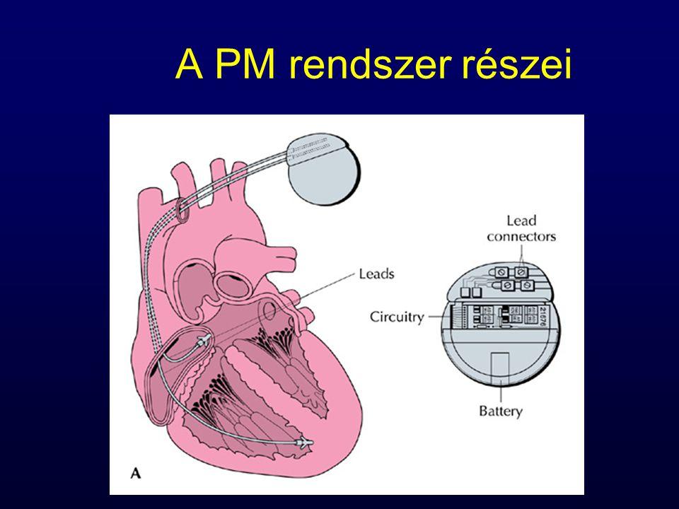 A PM rendszer részei