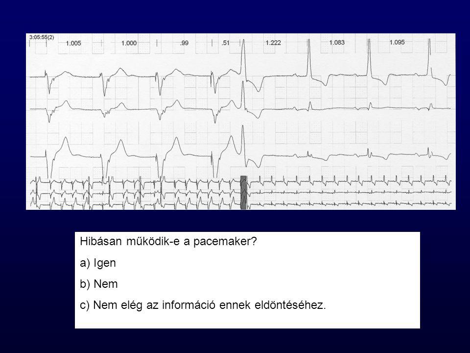 Hibásan működik-e a pacemaker Igen Nem