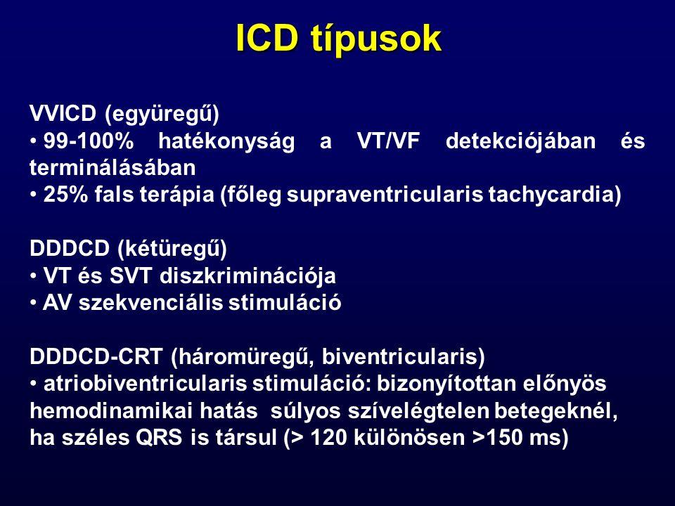 ICD típusok VVICD (együregű)