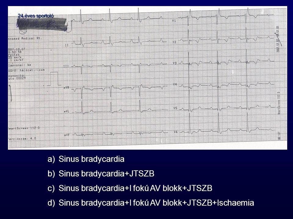 Sinus bradycardia+JTSZB Sinus bradycardia+I fokú AV blokk+JTSZB