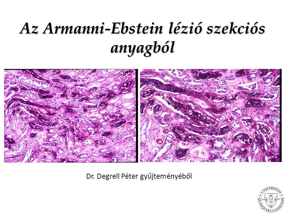 Az Armanni-Ebstein lézió szekciós anyagból