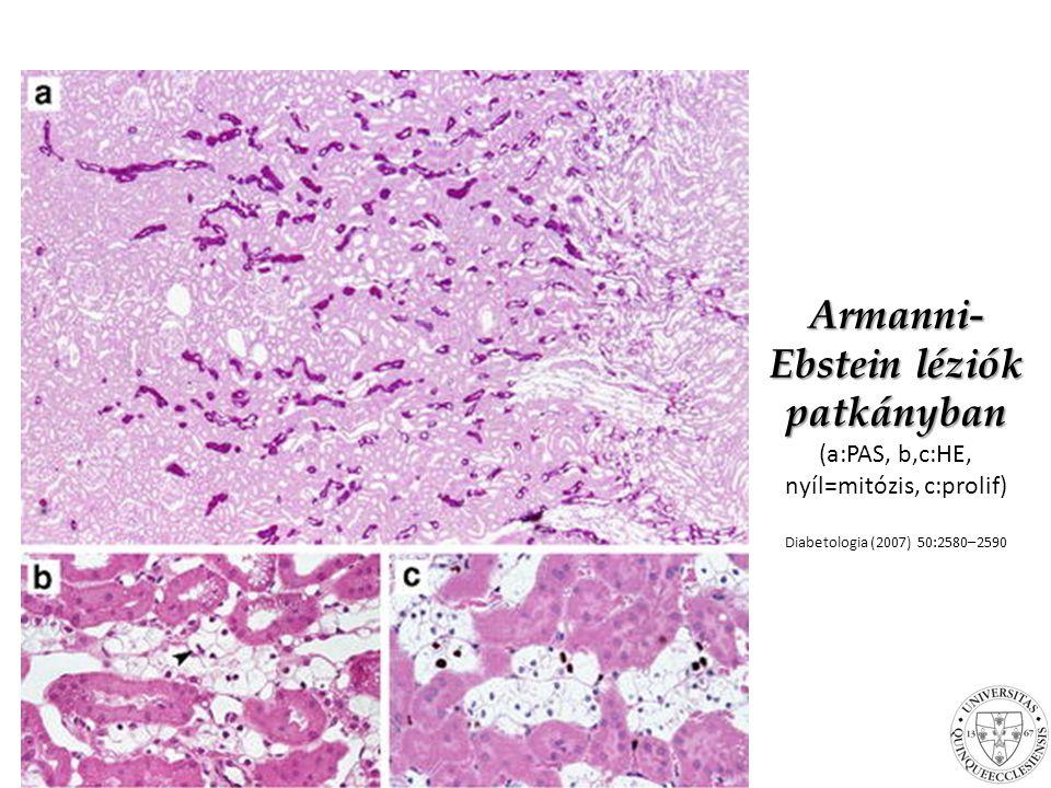 Armanni-Ebstein léziók patkányban (a:PAS, b,c:HE, nyíl=mitózis, c:prolif)