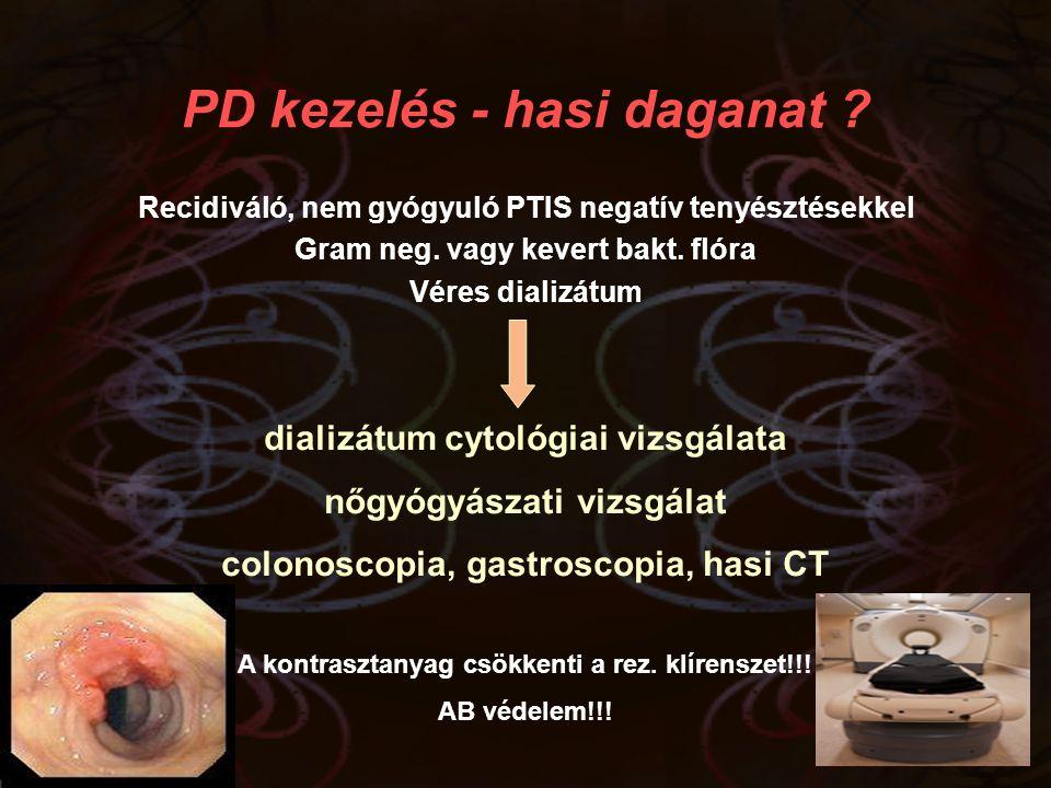 PD kezelés - hasi daganat