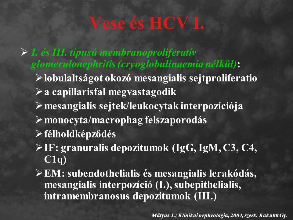 Vese és HCV I. I. és III. típusú membranoproliferatív glomerulonephritis (cryoglobulinaemia nélkül):