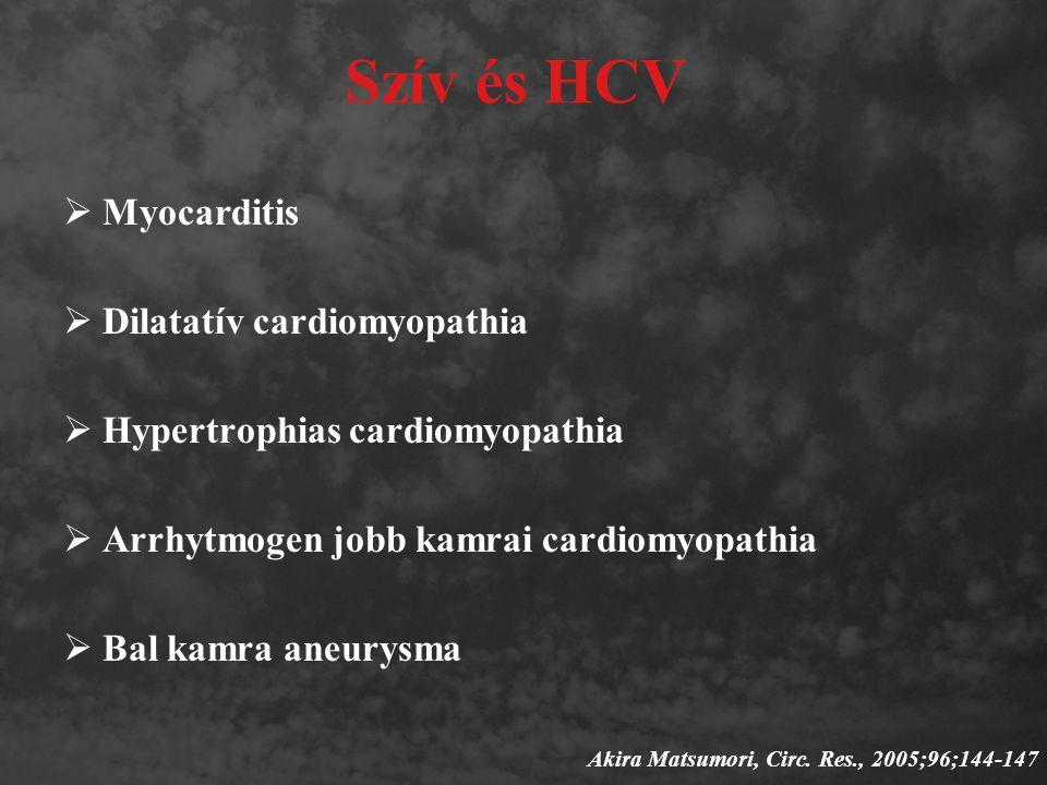 Szív és HCV Myocarditis Dilatatív cardiomyopathia