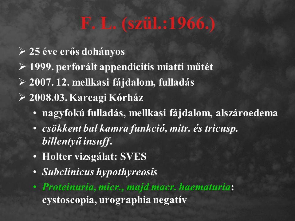 F. L. (szül.:1966.) 25 éve erős dohányos