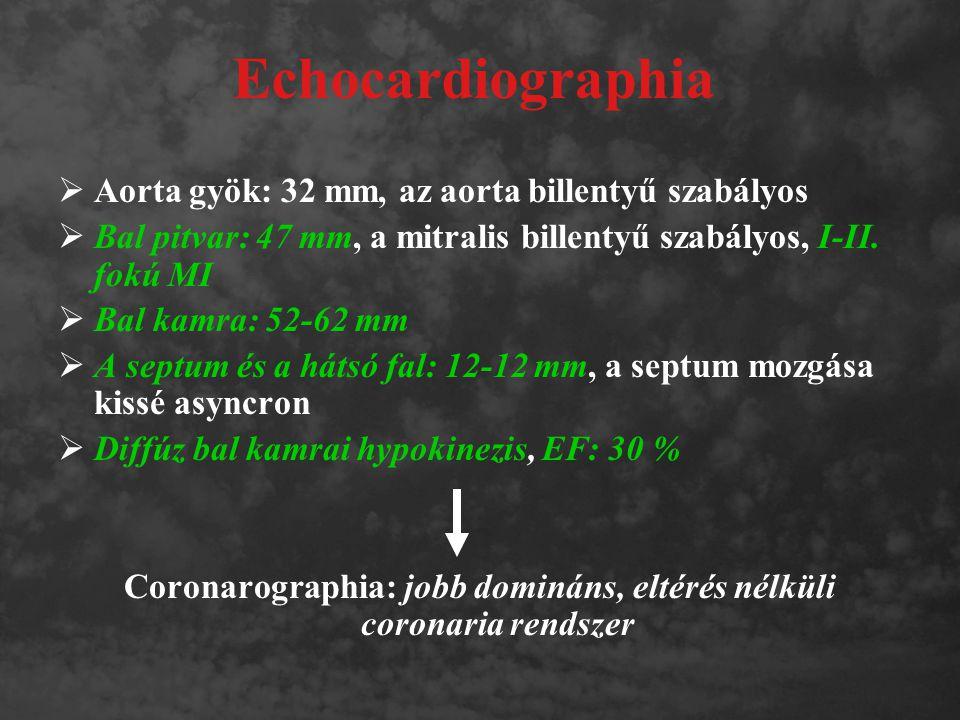 Coronarographia: jobb domináns, eltérés nélküli coronaria rendszer