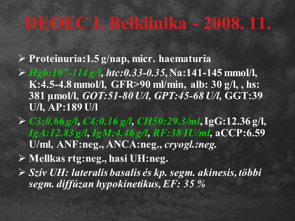 DEOEC I. Belklinika - 2008. 11. Proteinuria:1.5 g/nap, micr. haematuria.