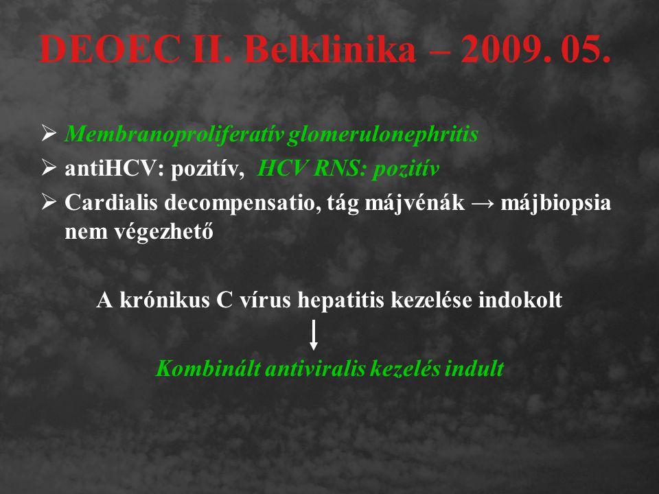 DEOEC II. Belklinika – 2009. 05. Membranoproliferatív glomerulonephritis. antiHCV: pozitív, HCV RNS: pozitív.