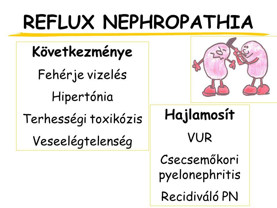 Csecsemőkori pyelonephritis