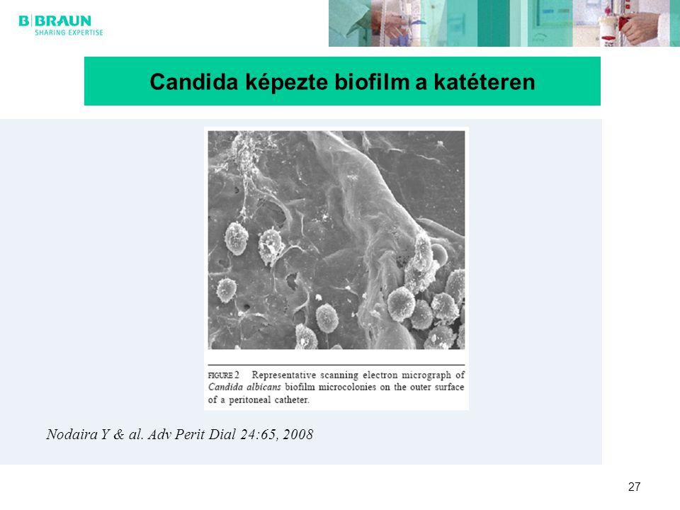 Candida képezte biofilm a katéteren