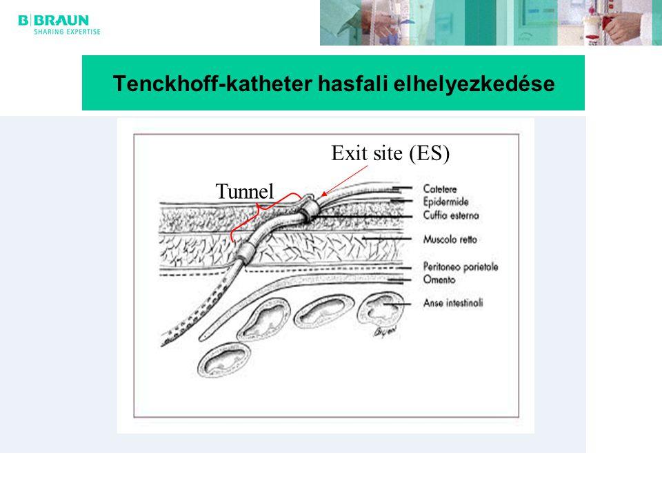 Tenckhoff-katheter hasfali elhelyezkedése