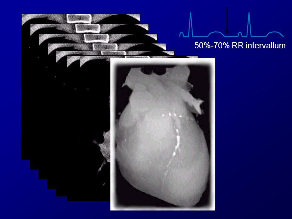 50%-70% RR intervallum