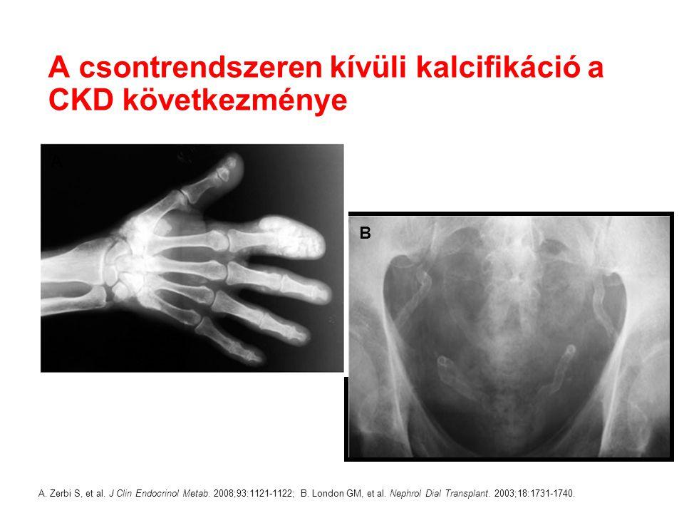 A csontrendszeren kívüli kalcifikáció a CKD következménye