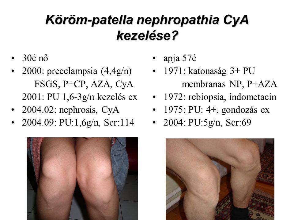Köröm-patella nephropathia CyA kezelése