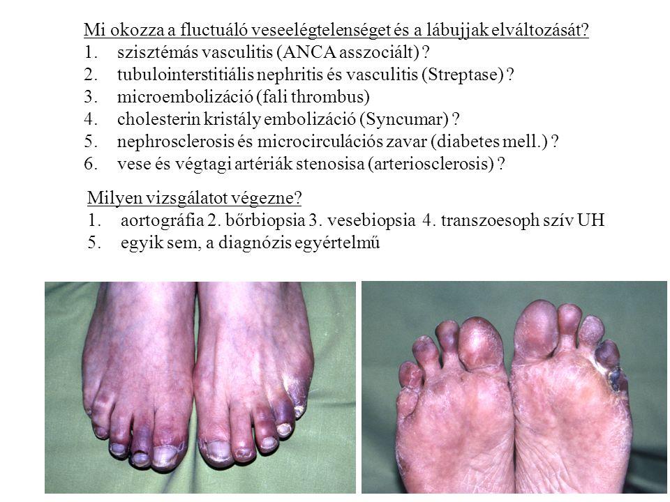 Mi okozza a fluctuáló veseelégtelenséget és a lábujjak elváltozását