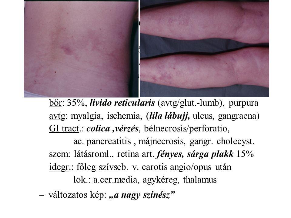 Cholesterin embolizáció típusos klinikuma
