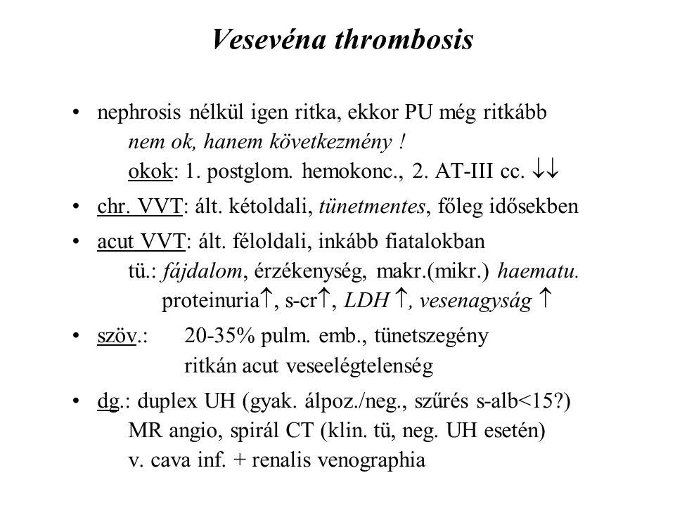 Vesevéna thrombosis