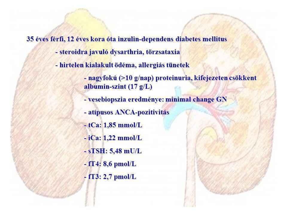 35 éves férfi, 12 éves kora óta inzulin-dependens diabetes mellitus