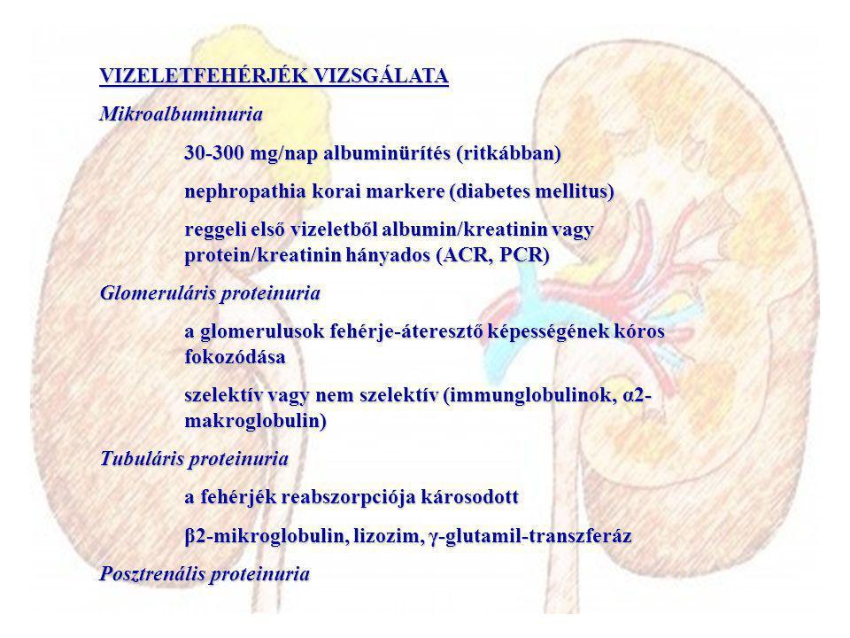 VIZELETFEHÉRJÉK VIZSGÁLATA Mikroalbuminuria