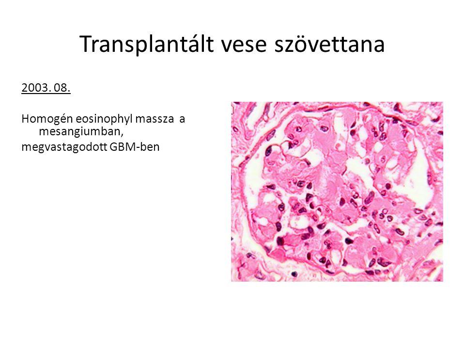 Transplantált vese szövettana