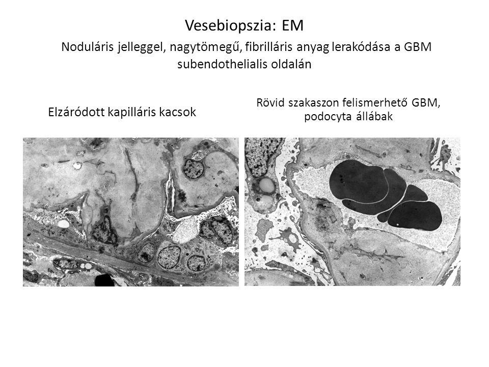 Rövid szakaszon felismerhető GBM, podocyta állábak