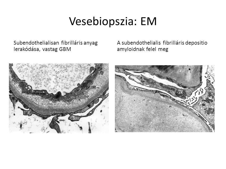 Vesebiopszia: EM Subendothelialisan fibrilláris anyag lerakódása, vastag GBM.