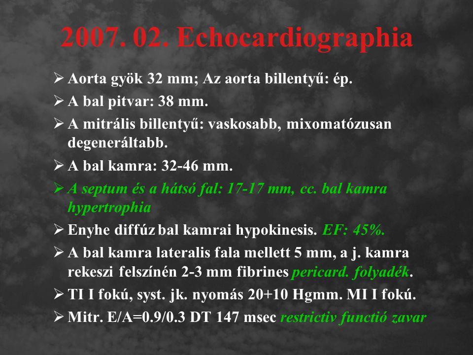 2007. 02. Echocardiographia Aorta gyök 32 mm; Az aorta billentyű: ép.