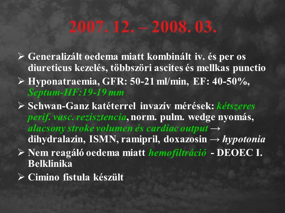 2007. 12. – 2008. 03. Generalizált oedema miatt kombinált iv. és per os diureticus kezelés, többszöri ascites és mellkas punctio.