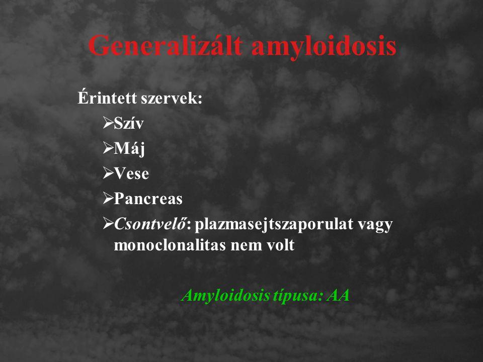 Generalizált amyloidosis