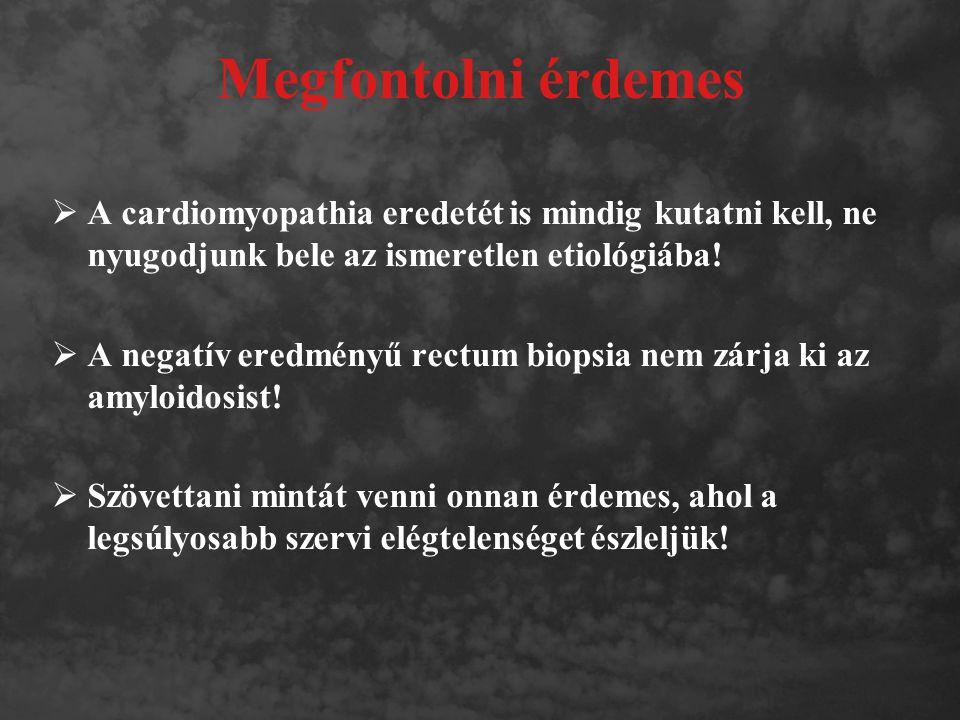 Megfontolni érdemes A cardiomyopathia eredetét is mindig kutatni kell, ne nyugodjunk bele az ismeretlen etiológiába!