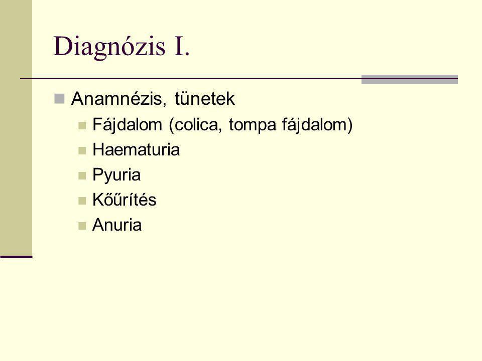Diagnózis I. Anamnézis, tünetek Fájdalom (colica, tompa fájdalom)