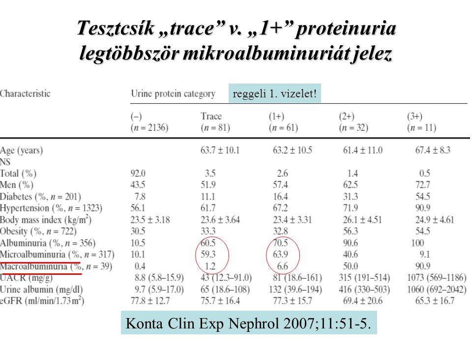 """Tesztcsík """"trace v. """"1+ proteinuria legtöbbször mikroalbuminuriát jelez"""