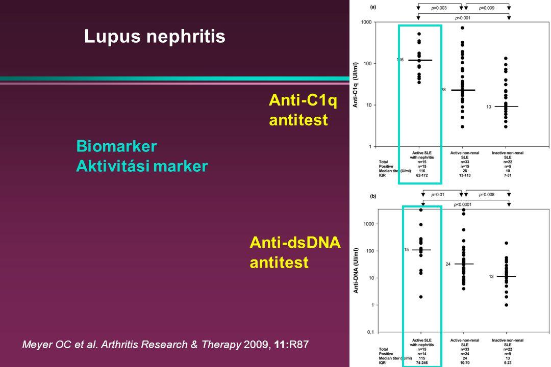 Lupus nephritis Anti-C1q antitest Biomarker Aktivitási marker