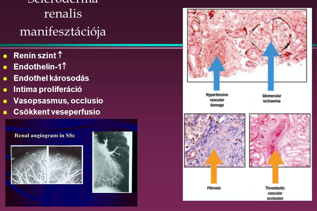 Scleroderma renalis manifesztációja