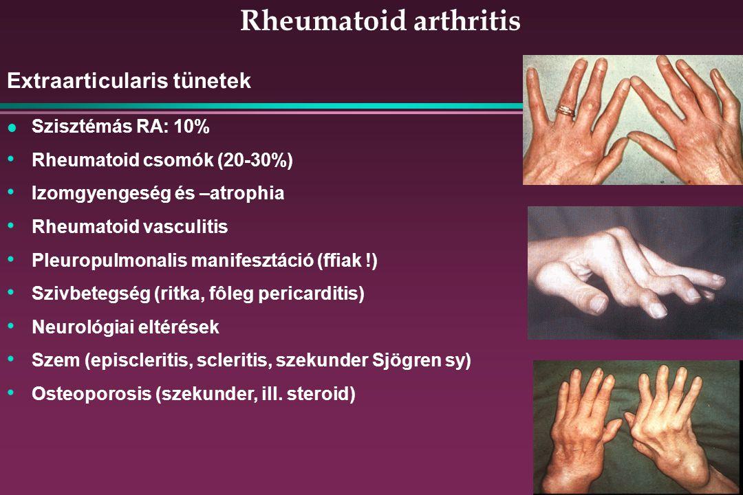 Rheumatoid arthritis Extraarticularis tünetek Szisztémás RA: 10%