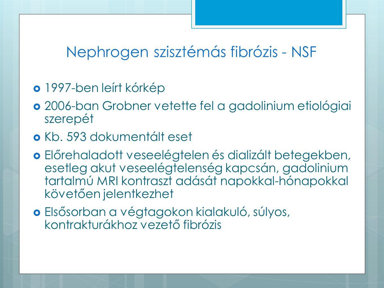 Nephrogen szisztémás fibrózis - NSF