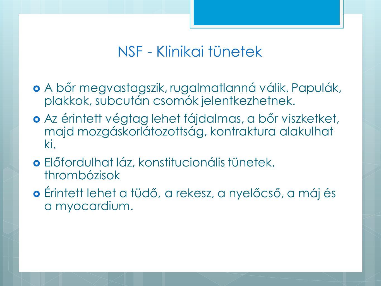 NSF - Klinikai tünetek A bőr megvastagszik, rugalmatlanná válik. Papulák, plakkok, subcután csomók jelentkezhetnek.