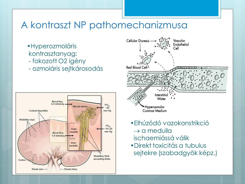 A kontraszt NP pathomechanizmusa